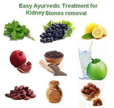 kidney stone treatment pune   kidney stone specialist pune, Human Body
